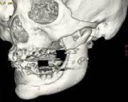 人工骨移植