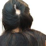 橋本病にニューヨークで罹患した筆者の闘病記。きっかけは10か所以上の円形脱毛だった