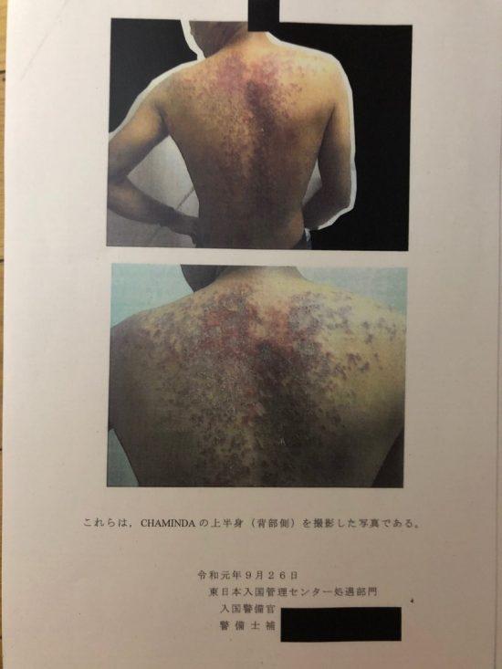ダヌカさんの蕁麻疹